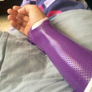 Pretty splint